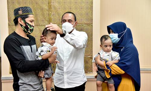 Gubernur Edy Rahmayadi Apresiasi Tim Dokter Pemisahan Kembar Siam